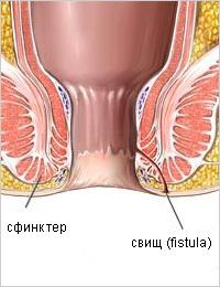 Геморрой на начальной стадии симптомы лечение фото